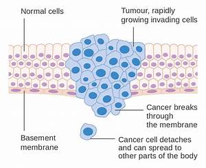 File Diagram Showing A Malignant Tumour Cruk 069 Svg