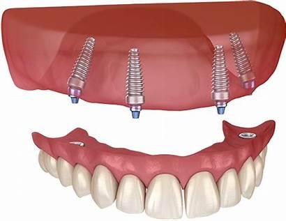 Dental Implants Implant Teeth Installed Denture Bone