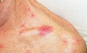 dravit syndrome