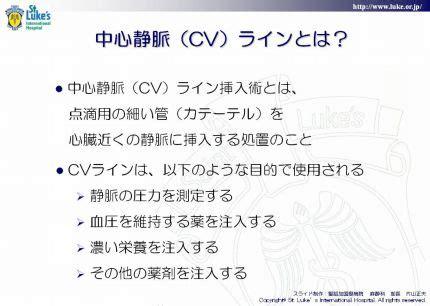 Idée Cv by 中心静脈 Cv ライン ー Qlife Library