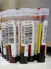 hyperkalemia high blood potassium levels  women phaacom