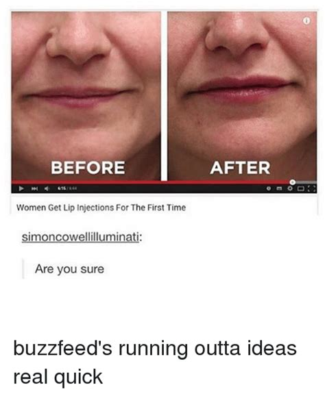 Buzzfeed Memes - before women get lip injections for the first time simoncowellilluminati are you sure after