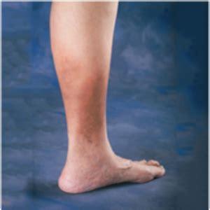 Tired, heavy legs may indicate CVI   Health24