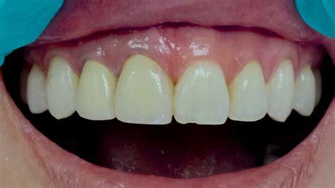 case  porcelain crowns ivory dental
