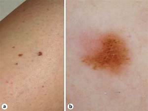 The Excision Of This Clinically Inconspicuous Melanoma On The Leg Of A