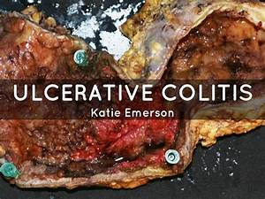 Ulcerative colitis by 4801763106