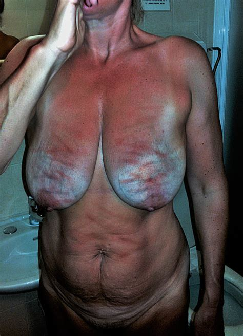 showing media and posts for bruised boobs xxx veu xxx