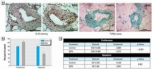 Cell proliferation and apoptosis in mammary glands of 50 ...