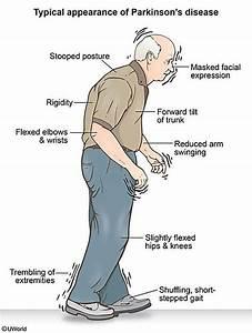 New Developments in Parkinson's Disease — TPG, Inc.
