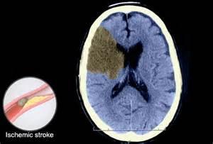 Ischemic Stroke CT Scan Brain