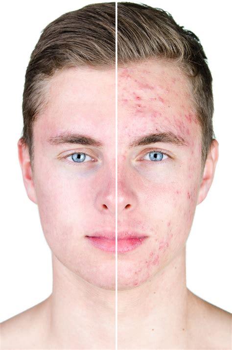 Marielle legt uit: krijg ik acne door vette creme?
