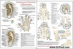 Auricular Therapy Ear Chart Acupuncture Treatment Of Headaches Chart