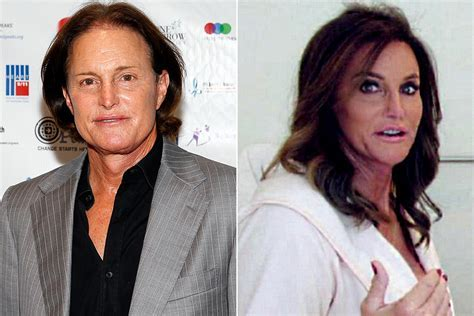 Caitlyn Jenner?s new face cost $70,000   Page Six