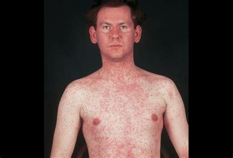Measles Rash Adults Symptoms