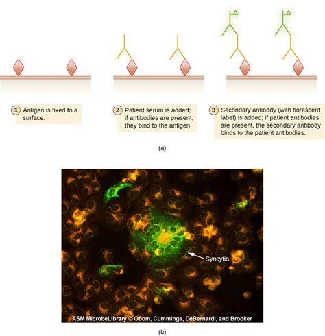 Credit Analysis Sle by 20 5 Fluorescent Auto Antibody Techniques Biology