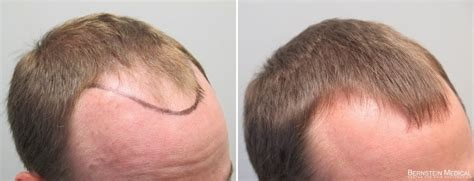 hair solutions: What is minoxidil?