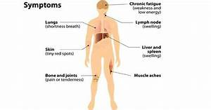 What Is Lymphoma Causes Symptoms And Homeopathic Treatment