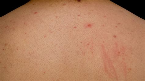 Get Rid Of Back Acne Chest Acne Acne Treatment Youtube