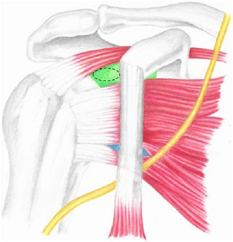 The shoulder girdle includes three bonesthe scapula clavicle and humerus. The musculocutaneous nerve (yellow) in relation to ...