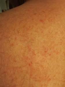 Lèvre Enflée Bouton : creme pour cicatrice au visage naturel ~ Medecine-chirurgie-esthetiques.com Avis de Voitures