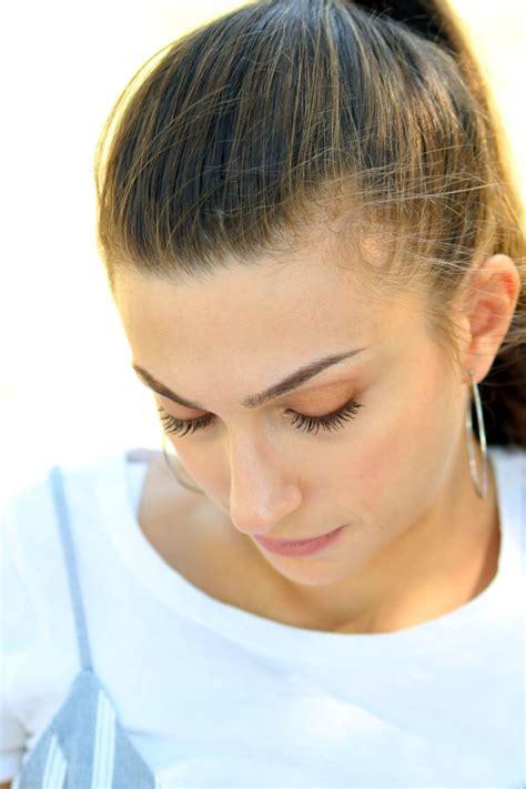 stress  hair loss   treat telogen effluvium