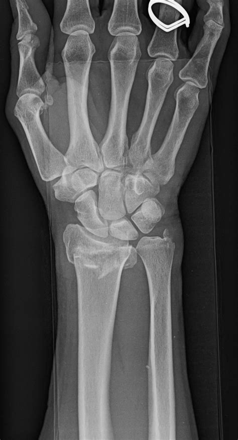 Broken Wrist Treatment in Raleigh, NC - John Erickson, MD