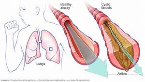 Cystic Fibrosis Disease Reference Guide