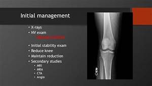 Patella  Tibia  Foot And Ankle Injuries