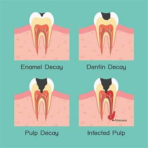 The Story Behind Tooth Decay