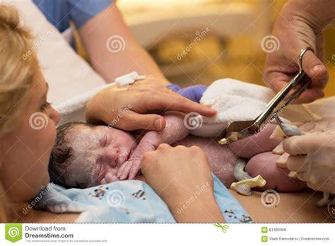 Baby Umbilical Cord Care Newborn Foto Bugil Bokep 2017