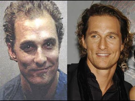 Matthew McConaughey - Hair Transplant - YouTube