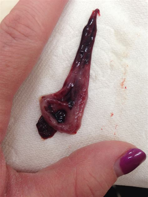 Is this a normal period clot??(Gross pics) Weddingbee
