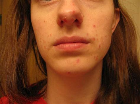 Bumps In Hair Scalptips For Avoiding And Taking Care Of