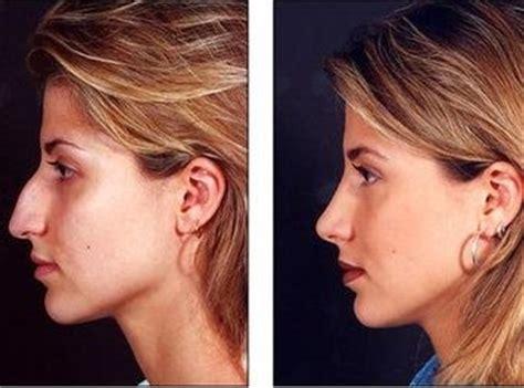nose job work medicompare