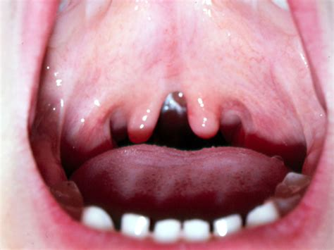 Cleft Palate Cleft Lip Causes Symptoms Repair Surgery