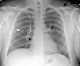 Solitary Pulmonary Nodule Lung