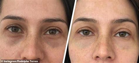 permanent makeup dark circles makeup vidalondon