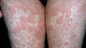 Vasculitis Symptoms