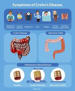 Natural Solutions To Crohn U0026 39 S Disease