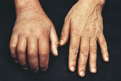 bitkisel oedem tedavisi ile oedem nasil atilir dogal yollar