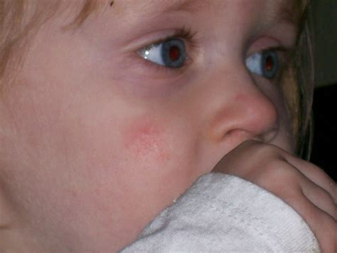 Pin Baby S Face Http Www Safety Concerns Com Acne Rash