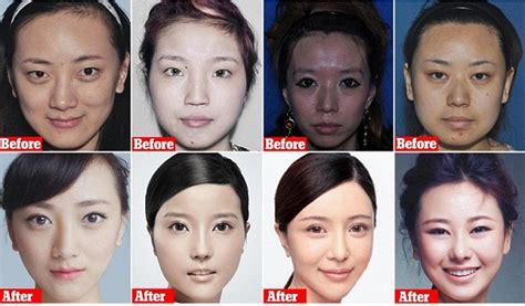 Korean Plastic Surgery Meme - korean plastic surgery meme www pixshark com images galleries with a bite