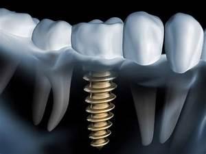 Hausautomatisierung Welches System : welches zahnimplantat system ist das beste youtube ~ Markanthonyermac.com Haus und Dekorationen