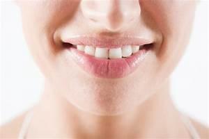 Weiße Zähne Hausmittel : 10 tipps und hausmittel f r wei e z hne ~ Frokenaadalensverden.com Haus und Dekorationen