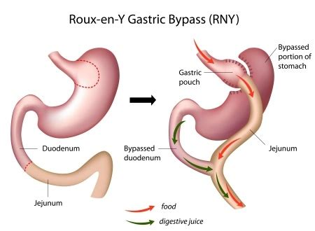 Rouxeny Gastric Bypass  Dr Scott Laker  Michigan Surgery. Social Media Analytics Tool. Online Lpn Programs In Florida. How To Start An Online Website. Gold Delta Skymiles Credit Card. Affordable Garage Door Insurance Company News. Website For My Business Results Of Laser Lipo. Mortgage Refinance Rates Utah. Lawyers For Work Discrimination