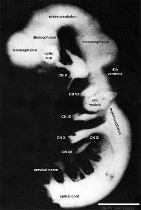 Carnegie stage 14 - Embryology