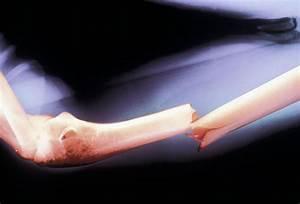 How to Heal Broken Bones as Quickly as Possible