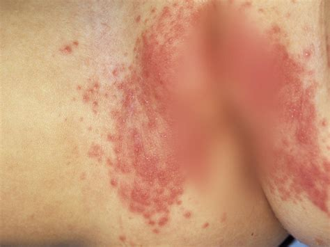Childhood Rashes Skin Conditions And Infections Photos