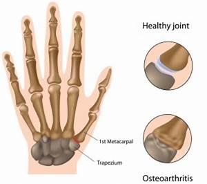 Pijn in de hand, pols of vingers mogelijke oorzaken mens