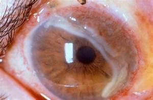 Mooren U0026 39 S Ulcer